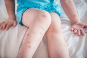 Mosquito bites sore and scar on child legs
